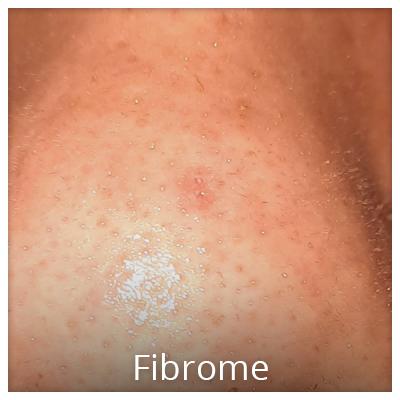 Fibrom nach der Behandlung