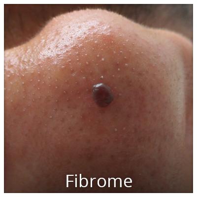 Fibrom vor der Behandlung